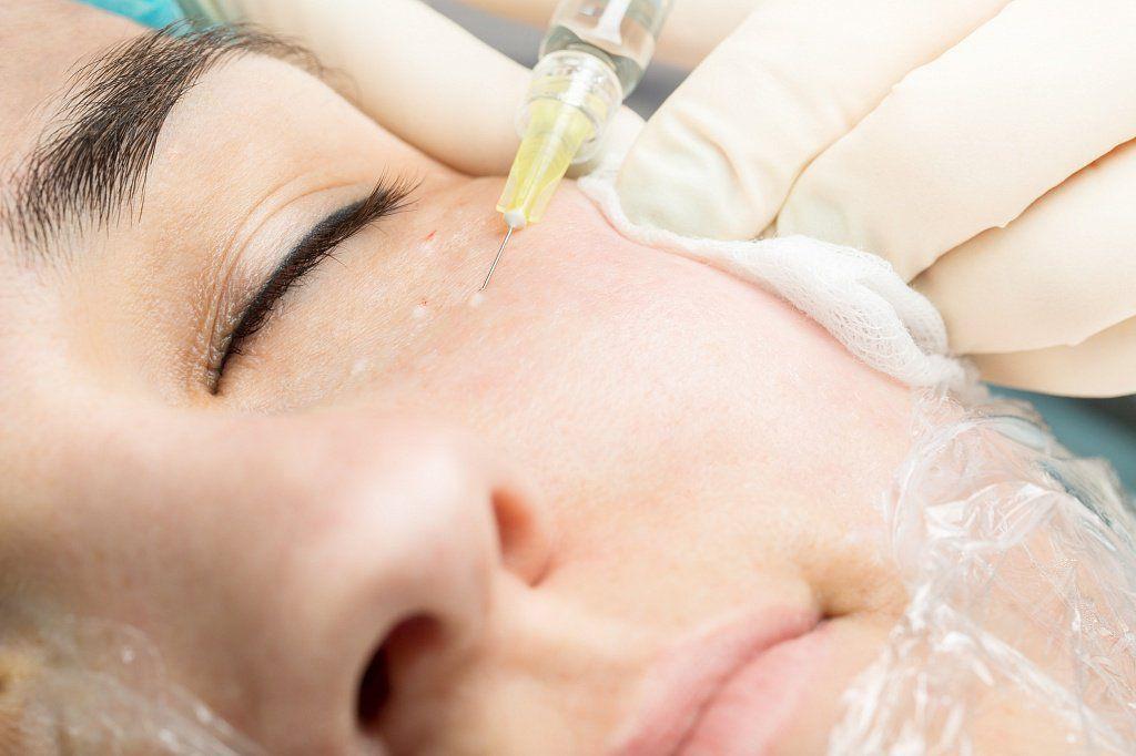 биоревитализация периорбитальной области